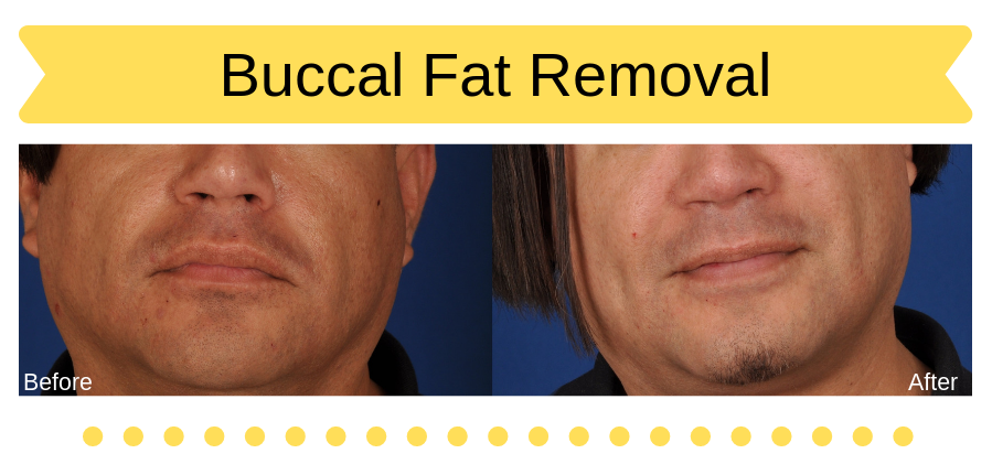 Man before and after buccal fat removal