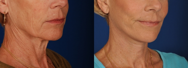 Face Lift - Patient Photo 5