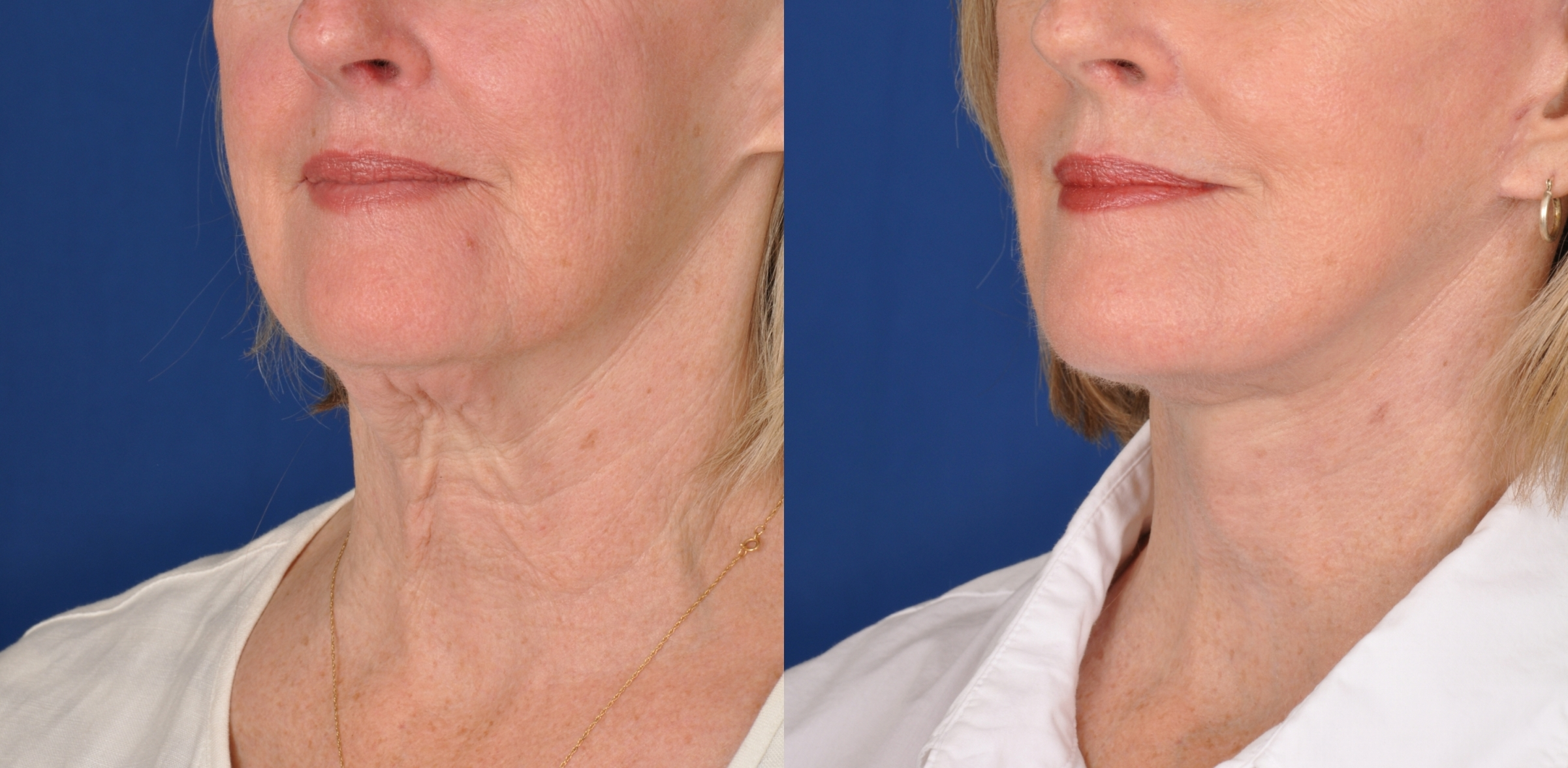 Face Lift - Patient Photo 4