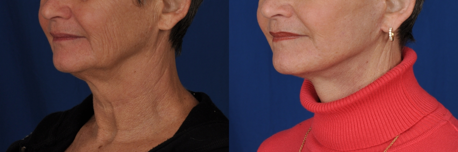 Face Lift - Patient Photo 3