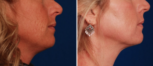 Laser Resurfacing to reverse sun damage by Dr. Khoury