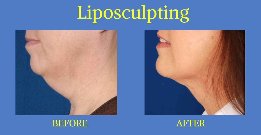 Liposculpting-3-Blog-BA