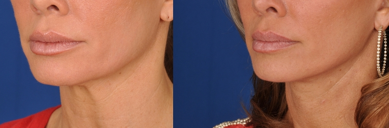 Face Lift - Patient Photo 1