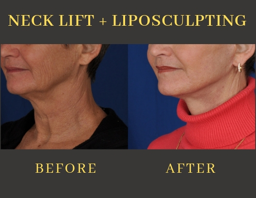 NECK LIFT + LIPOSCULPTING-img-blog