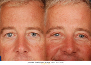 Upper Eyelid Lift Before and After