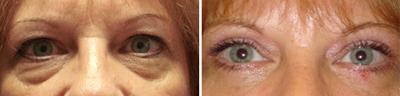 eyelid Lift - Patient Photo 1
