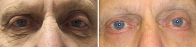 eyelid Lift - Patient Photo 2