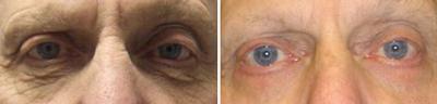 eyelid Lift - Patient Photo 2