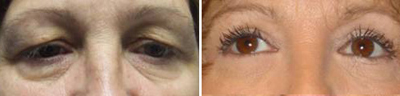 eyelid Lift - Patient Photo 3
