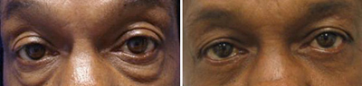 eyelid Lift - Patient Photo 4