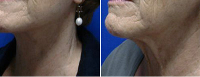 Neck Lift Patient Photo 1