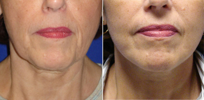 Face Lift - Patient Photo 2