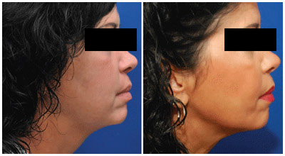 Face Lift - Patient Photo 1